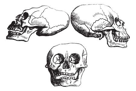 Positional plagiocephaly or Deformational plagiocephaly or flathead syndrome, vintage engraved illustration. Trousset encyclopedia (1886 - 1891).