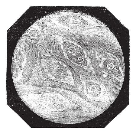 плоть: Инжир. 1. Кусок плоти свинины трихинелл; взрослый, старинные гравированные иллюстрации. Magasin Pittoresque 1875.