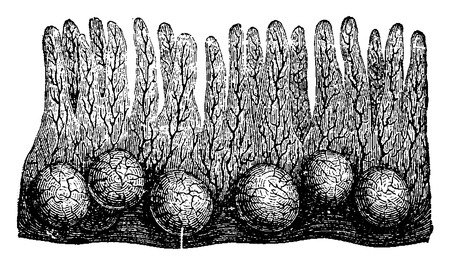 Peyers Patch or Aggregated Lymphoid Nodules, vintage engraved illustration. Usual Medicine Dictionary by Dr Labarthe - 1885 Illustration