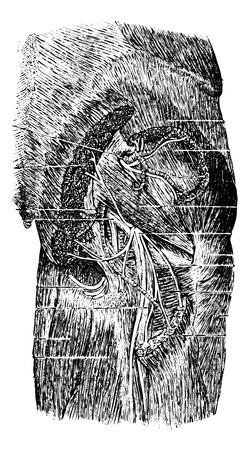 Spieren, bloedvaten en zenuwen van de posterior regio van de bil, vintage gegraveerde illustratie. Usual Geneeskunde Woordenboek door Dr. Labarthe - 1885