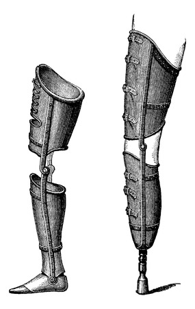 Artificial Legs, shown with foot (left) and with pestle (right), vintage engraved illustration. Usual Medicine Dictionary by Dr Labarthe - 1885 Illustration