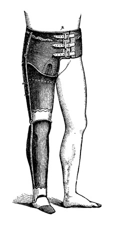 hip replacement: Artificial Leg for Full Hip Disarticulation, vintage engraved illustration. Usual Medicine Dictionary by Dr Labarthe - 1885