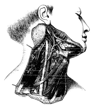 Deep Lateral Region of the Human Neck, vintage engraved illustration. Usual Medicine Dictionary by Dr Labarthe - 1885 Vector