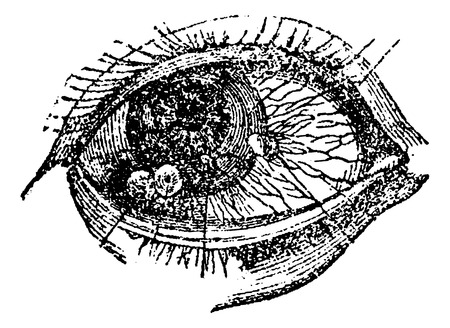 pus: Eye with Pustular Conjunctival Keratitis, vintage engraved illustration. Usual Medicine Dictionary by Dr Labarthe - 1885