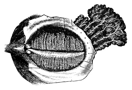 lacrimal: Deep Surface of the Human Eyelid with the Nasolacrimal Gland, vintage engraved illustration. Usual Medicine Dictionary by Dr Labarthe - 1885