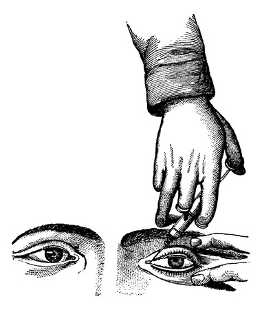 meatus: Injecting the Nasolacrymal Canal, vintage engraved illustration. Usual Medicine Dictionary by Dr Labarthe - 1885