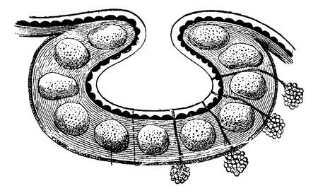 Folliculaire Klieren van de basis van de tong, vintage gegraveerde illustratie. Usual Geneeskunde Woordenboek door Dr. Labarthe - 1885