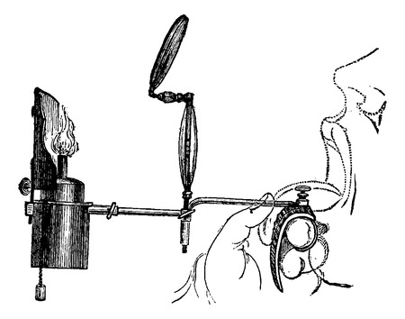 gas lamp: Portable Laryngoscope, illuminated by direct light from a gas lamp, used to examine a patients mouth, vintage engraved illustration. Usual Medicine Dictionary by Dr Labarthe - 1885