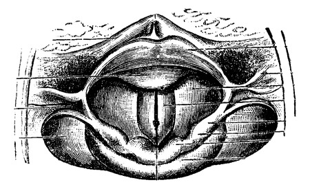 esophagus: Normal Larynx, as seen through a Laryngoscopic Mirror, vintage engraved illustration. Usual Medicine Dictionary by Dr Labarthe - 1885