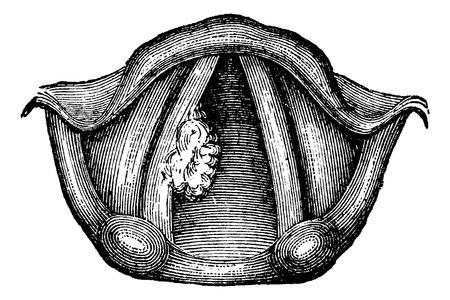 laringe: Solitario papiloma de laringe, cosecha ilustraci�n grabada. Diccionario Usual Medicina por el Dr. Labarthe - 1885