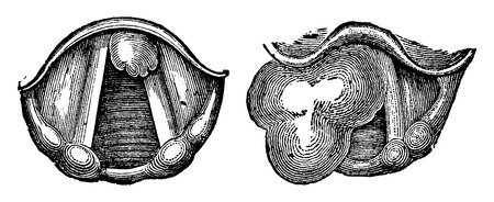 laringe: Los fibromas de la laringe, cosecha ilustraci�n grabada. Diccionario Usual Medicina por el Dr. Labarthe - 1885 Vectores
