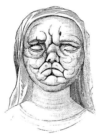 lepra: La lepra o enfermedad de Hansen, que muestra a una mujer con la piel del rostro irregularmente engrosada, cosecha ilustraci�n grabada. Diccionario Usual Medicina por el Dr. Labarthe - 1885