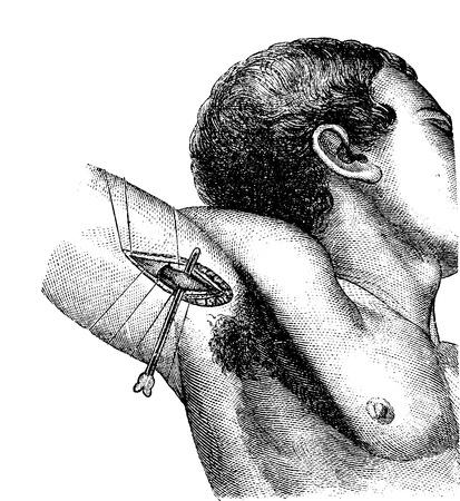 axila: Ligadura de la arteria axilar en la axila, cosecha ilustraci�n grabada. Usual Diccionario Medicina - Paul Labarthe - 1885.