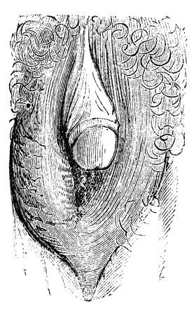 Hypertrophie du clitoris simulant la glande de l'homme et peuvent rendre les gens croient un hermaphrodisme de l'individu (forte), millésime gravé illustration. Magasin Pittoresque 1875. Banque d'images - 35097445
