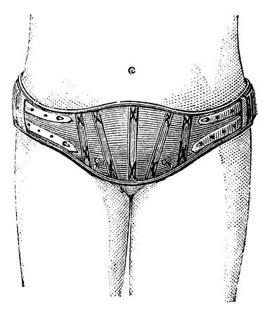 pubic: Hypogastric belt, vintage engraved illustration. Magasin Pittoresque 1875.