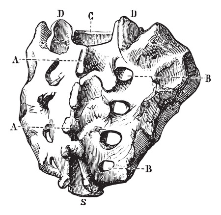 Sacrum seen by its posterior surface, vintage engraved illustration. Usual Medicine Dictionary by Dr Labarthe - 1885.