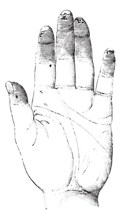 dr: Sclerosis or Sclerotizis of the left hand (palmar surface), vintage engraved illustration. Usual Medicine Dictionary by Dr Labarthe - 1885.