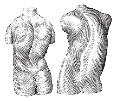 deform: Cast of two varieties of scoliosis, vintage engraved illustration. Usual Medicine Dictionary by Dr Labarthe - 1885. Illustration
