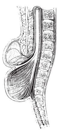 practiced: Cup anteroposterior spinal practiced on a spina bifida, vintage engraved illustration. Usual Medicine Dictionary by Dr Labarthe - 1885.