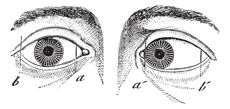deform: Esotropia of the left eye, vintage engraved illustration. Usual Medicine Dictionary by Dr Labarthe - 1885.