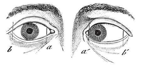 deform: Esotropia of the left eye, vintage engraved illustration. Usual Medicine Dictionary by Dr Labarthe - 1885.