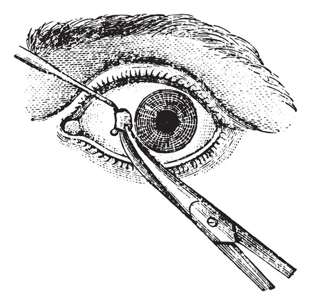 dr: Strabismus surgery, tendon section, vintage engraved illustration. Usual Medicine Dictionary by Dr Labarthe - 1885.