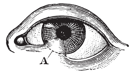 Symblepharon of the lower eyelid, vintage engraving.