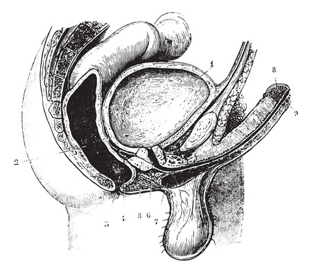 rectum: Anteroposterior cutting the genitals of the man, vintage engraved illustration. Usual Medicine Dictionary by Dr Labarthe - 1885. Illustration