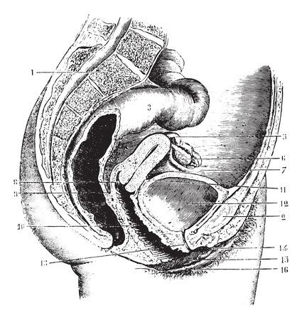 pubis: Female pelvis (anteroposterior section), vintage engraved illustration. Usual Medicine Dictionary by Dr Labarthe - 1885. Illustration