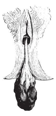 polyp: Cervical polyp, vintage engraved illustration. Usual Medicine Dictionary by Dr Labarthe - 1885.