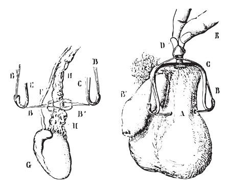 testiculos: El tratamiento de la ligadura de varicocele, cosecha ilustraci�n grabada. Diccionario Usual Medicina por el Dr. Labarthe - 1885. Vectores