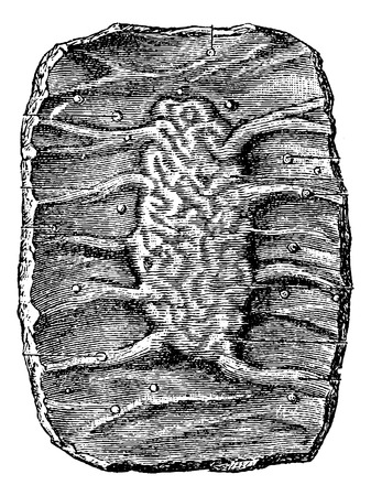 from small bowel: Section of a Portion of the Small Intestine showing a Peyers Patch, vintage engraved illustration. Usual Medicine Dictionary by Dr Labarthe - 1885 Illustration