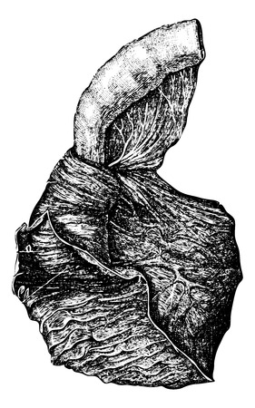 Intussusception of the Intestine, vintage engraved illustration. Usual Medicine Dictionary by Dr Labarthe - 1885