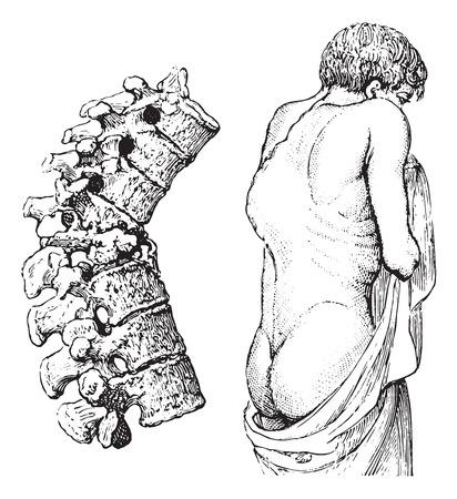 hump: Hump ??della malattia vertebrale o morbo di Pott, vintage illustrazione inciso. Solita dizionario Medicine dal dottor Labarthe - 1885. Vettoriali