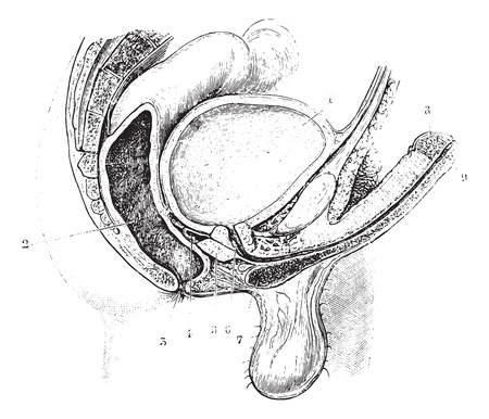 seminal: Cup antero-posterior reproductive tract of man, vintage engraved illustration. Usual Medicine Dictionary by Dr Labarthe - 1885.