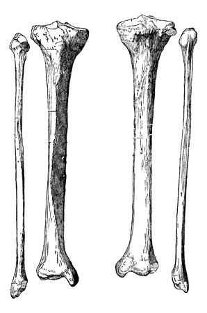 anatomie humaine: Bones jambe, le tibia et le péroné, illustration vintage gravé. Dictionnaire de médecine d'habitude par le Dr Labarthe - 1885