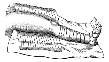 wrap wrapped: Leg Partially Wrapped with Bandage, vintage engraved illustration. Usual Medicine Dictionary by Dr Labarthe - 1885 Illustration