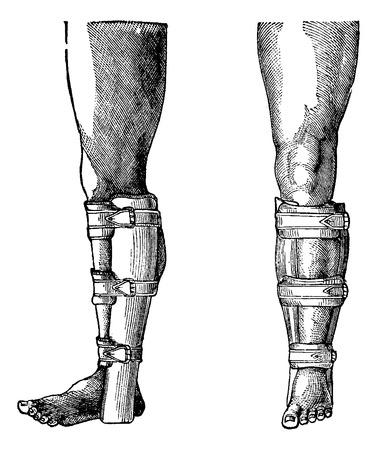 splint: Splint Applied to a Fractured Leg, vintage engraved illustration. Usual Medicine Dictionary by Dr Labarthe - 1885 Illustration