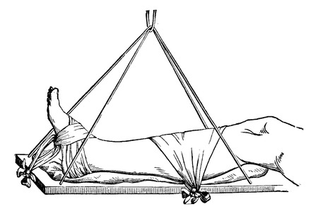 Leg Suspension Apparatus, vintage engraved illustration. Usual Medicine Dictionary by Dr Labarthe - 1885 Illustration