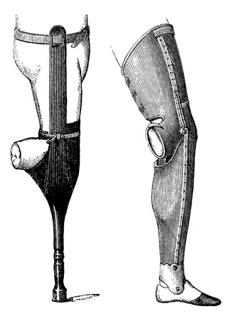 amputation: Artificial Legs with Pestle (left) and with Foot (right) for Below-knee Amputation, vintage engraved illustration. Usual Medicine Dictionary by Dr Labarthe - 1885 Illustration