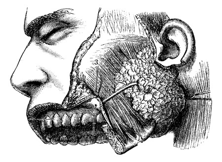 Human Parotid Gland and Sternocleidomastoid Muscle, vintage engraved illustration. Usual Medicine Dictionary by Dr Labarthe - 1885 Illustration