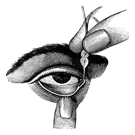 duct: La dilataci�n de Conducto Lagrimal utilizando sondas, ilustraci�n de la vendimia grabado. Diccionario Usual Medicina por el Dr. Labarthe - 1885