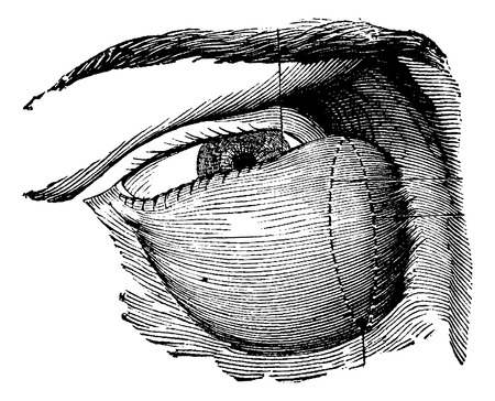 malignant growth: Highly Developed Lacrimal Tumor, vintage engraved illustration. Usual Medicine Dictionary by Dr Labarthe - 1885