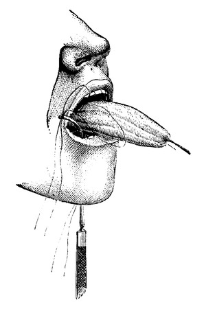 surgical needle: Partial Amputation of the Tongue using Ligatures, vintage engraved illustration. Usual Medicine Dictionary by Dr Labarthe - 1885