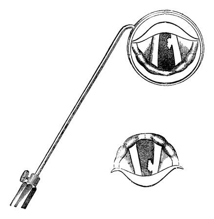 laringe: Partes de la laringe, como se ve a trav�s de un Espejo lar�ngeo, cosecha ilustraci�n grabada. Diccionario Usual Medicina por el Dr. Labarthe - 1885 Vectores