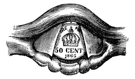 laringe: Coin Situado en la laringe, cosecha ilustraci�n grabada. Diccionario Usual Medicina por el Dr. Labarthe - 1885