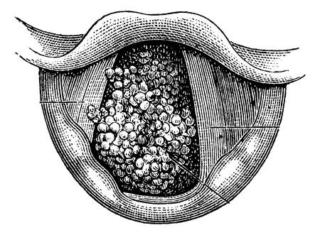 laringe: Papiloma de la laringe, vintage grabado ilustraci�n. Diccionario Usual Medicina por el Dr. Labarthe - 1885