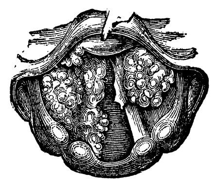 laringe: Papiloma m�ltiple de la laringe, cosecha ilustraci�n grabada. Diccionario Usual Medicina por el Dr. Labarthe - 1885