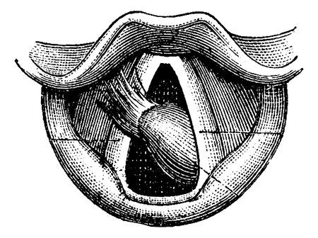 laringe: Fibroma de la laringe, cosecha ilustraci�n grabada. Diccionario Usual Medicina por el Dr. Labarthe - 1885 Vectores