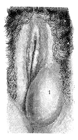 pus: Ascesso delle grandi labbra, vintage illustrazione inciso. Usual Dictionary Medicina - Paul Labarthe - 1885. Vettoriali